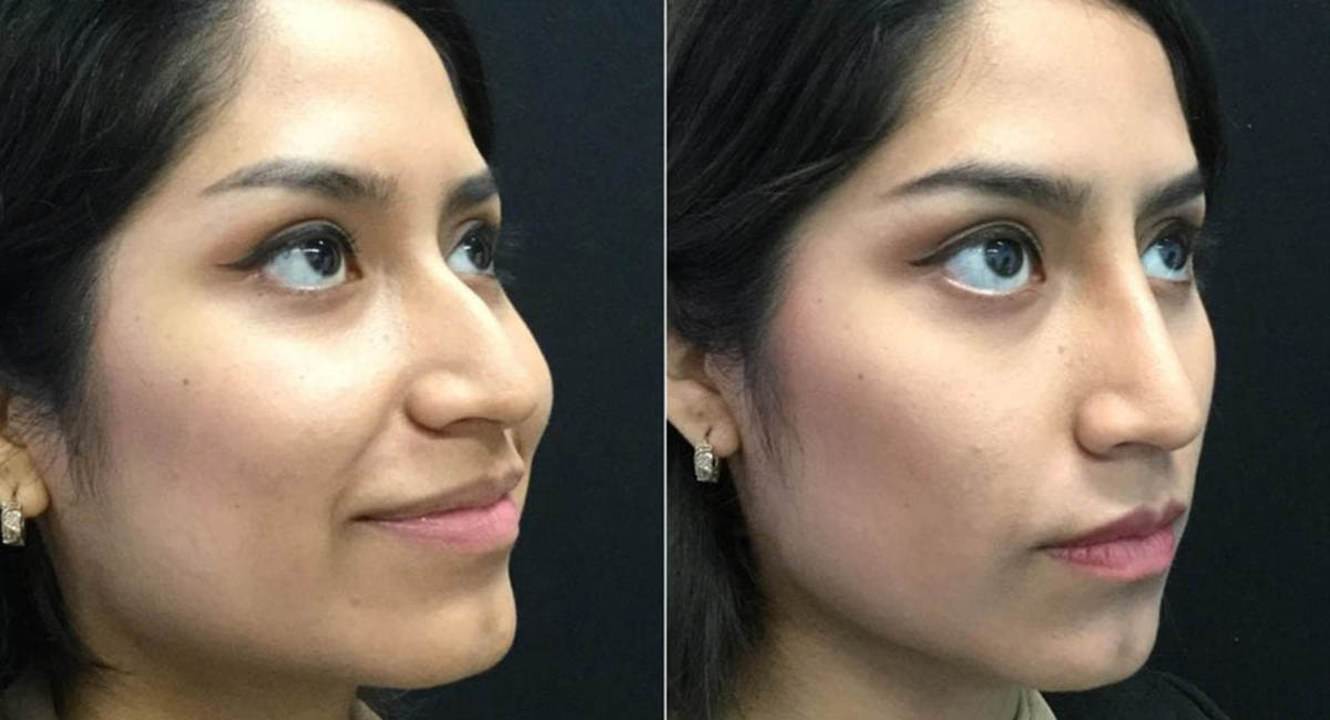 Woman before and after cosmetic surgery on her nose